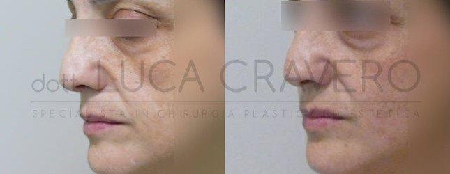 Lipofilling Foto Prima e Dopo 4.2