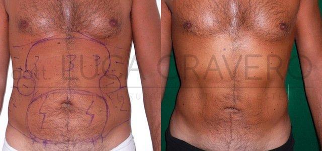 Liposuzione e liposcultura uomo [foto] 2.1