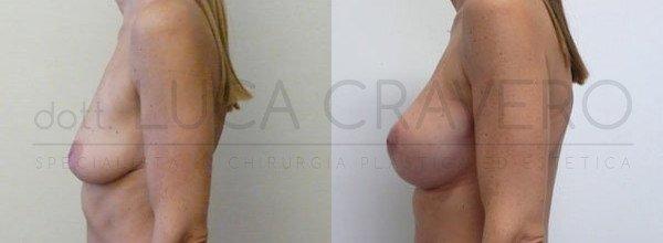 Mastoplastica Additiva. Protesi anatomiche 5.2