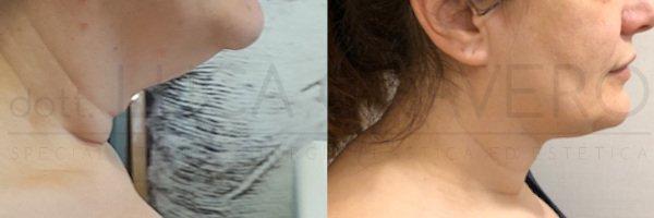 Lifting collo prima e dopo 1 - Dr. Cravero
