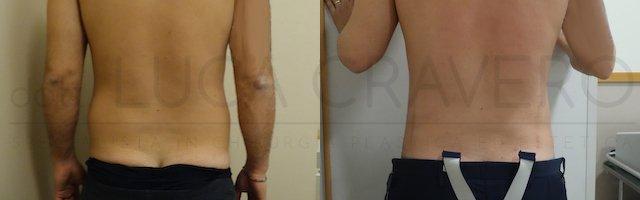 Liposuzione addome uomo con bodytite (Scultura muscolare) 25.10.18 4