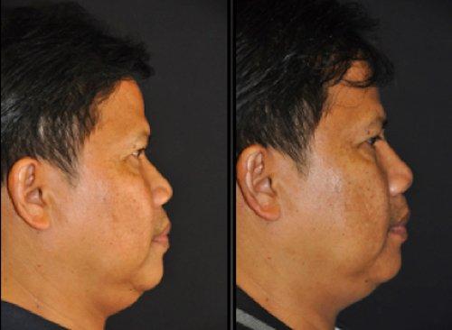 rinofiller rinoplastica non chirurgica 281019 3