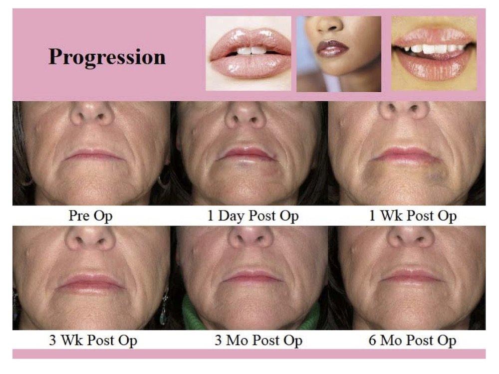 trattamento chirurgico innovativo labbra