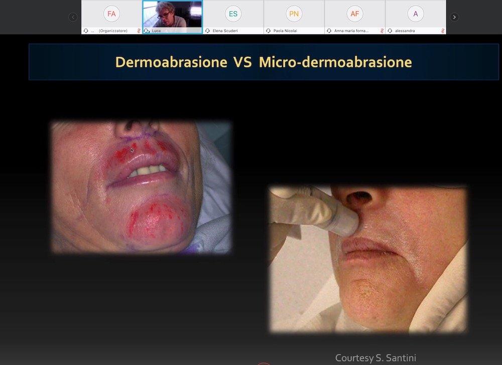 dermoabrasione vs micro dermoabrasione