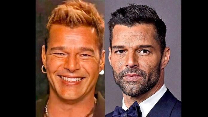 El 'nuevo' rostro de Ricky Martin, ¿fue cirugía o alergia?
