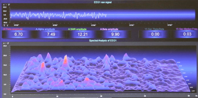 How the Lucia N°03 works: EEG of the Lucia N°03's effect on the brain