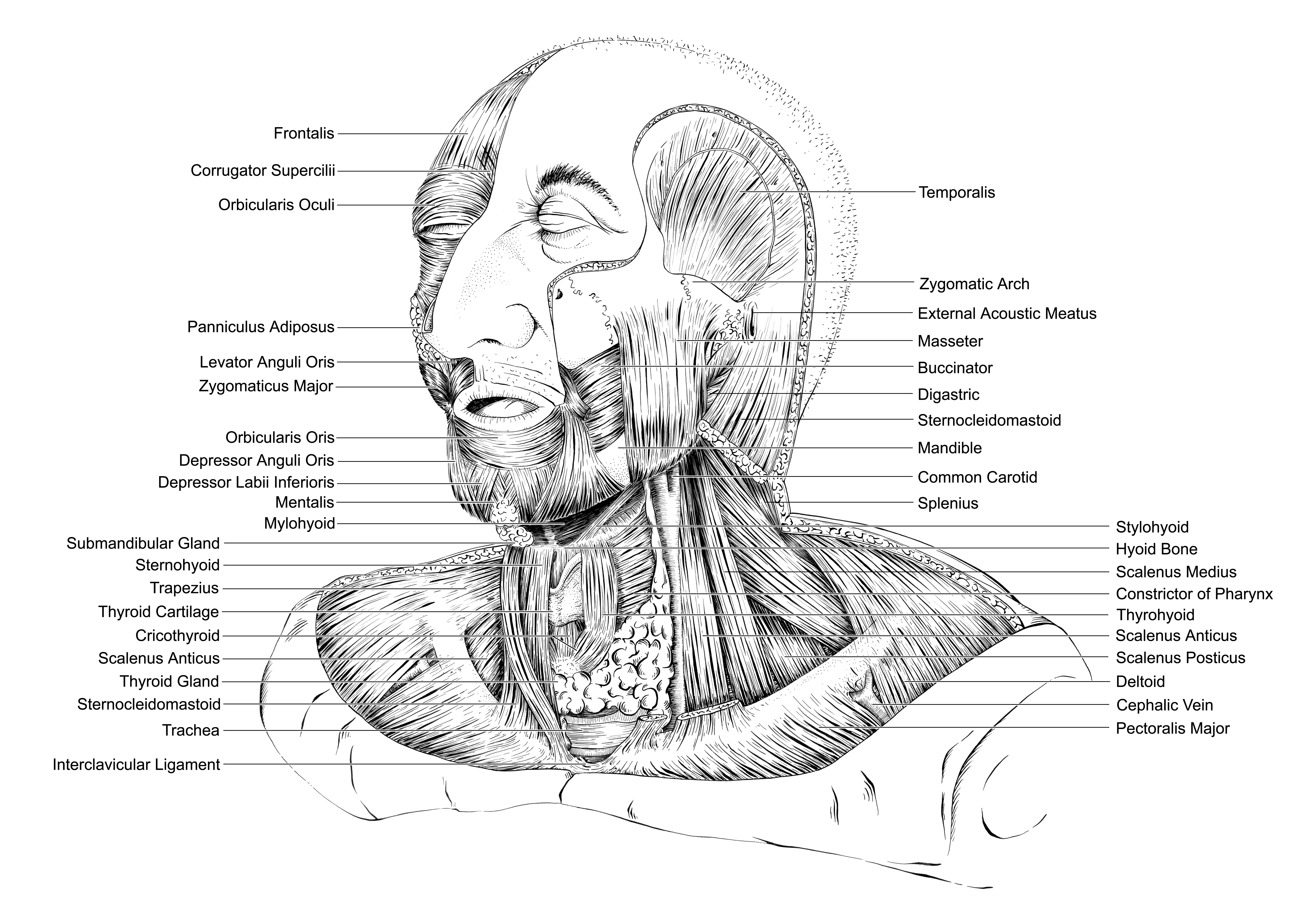 Neck Dissection Radical Neck Dissection