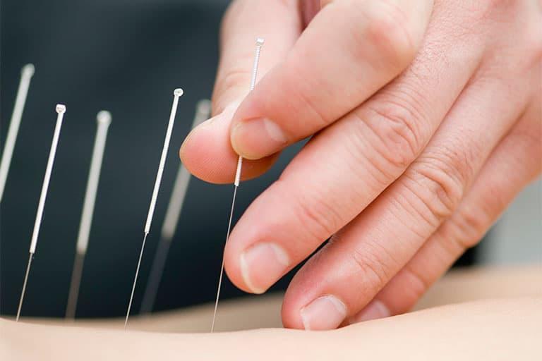 ▷ La acupuntura no sirve para dejar de fumar: Porqué es una estafa 1