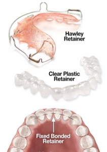 Three different styles of orthodontic retainers: Hawley Retainer, Clear Plastic Retainer, Fixed/Bonded Retainer