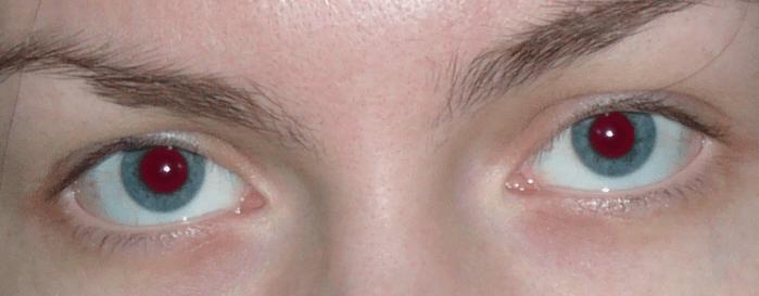Αφαιρέστε τη μέθοδο των κόκκινων ματιών 2 (18)