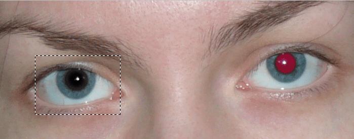 Αφαιρέστε τη μέθοδο των κόκκινων ματιών 2 (2)