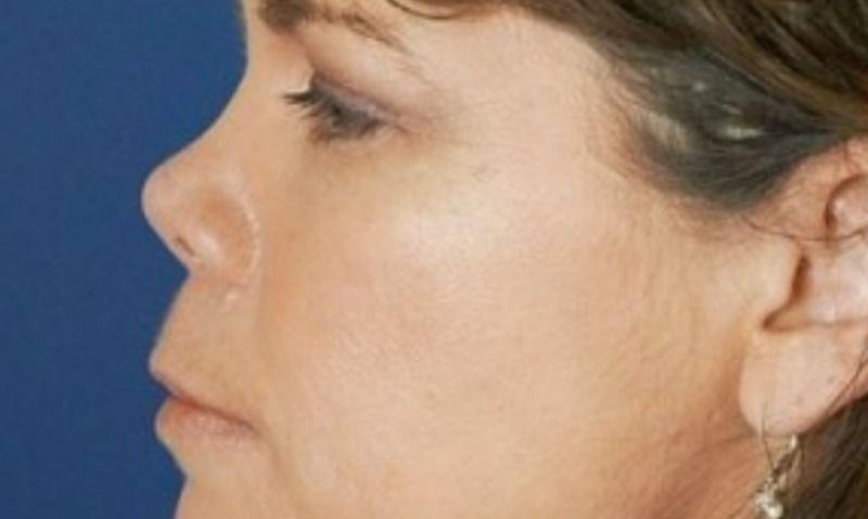 Курносый нос