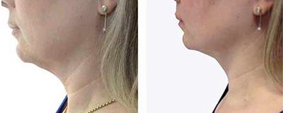 Soin Cryo 21 raffermissement du cou et double menton