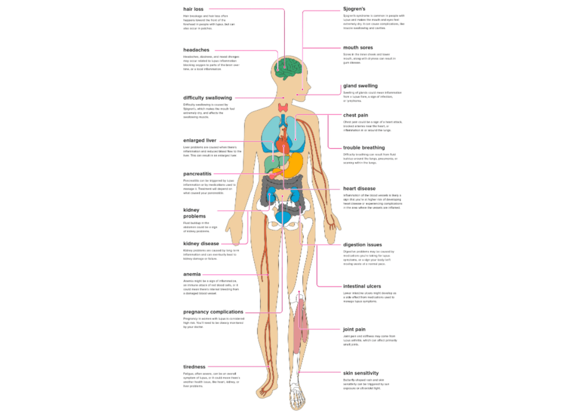 Lupus and our Bodies