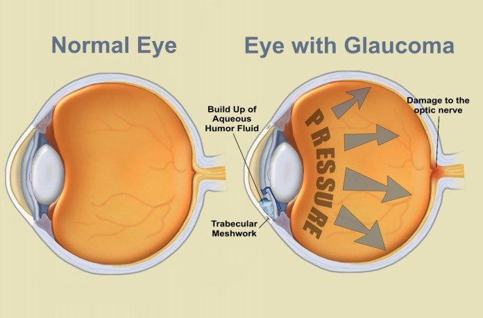 glaucoma-is-caused-by