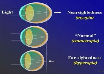 what is a stigmatism in your eye, What Is A Stigmatism In Your Eye? Eye Vision Problems
