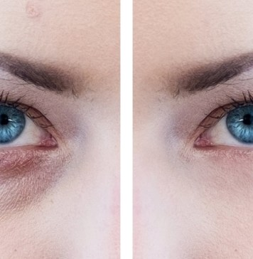 how-to-remove-bags-from-under-your-eyes