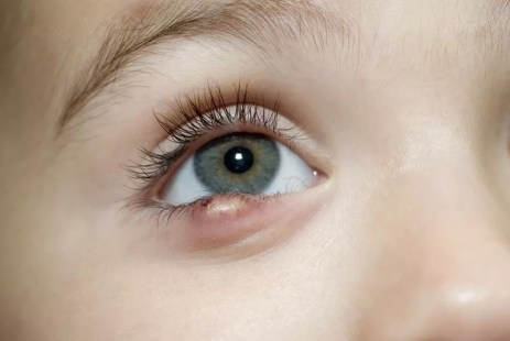 Eye Problems in Babies