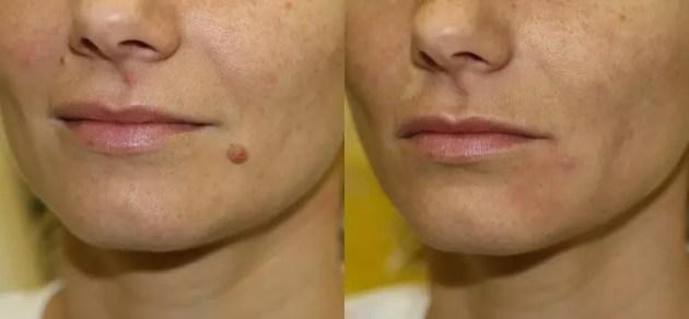 Facial Moles