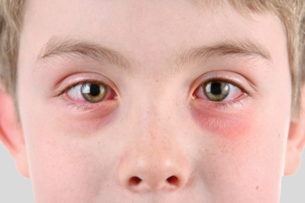 Eye Herpes, How to Get Rid of Eye Herpes – Symptoms, Treatment, Types, Causes
