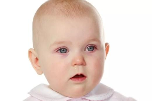 pink-eye-in-kids