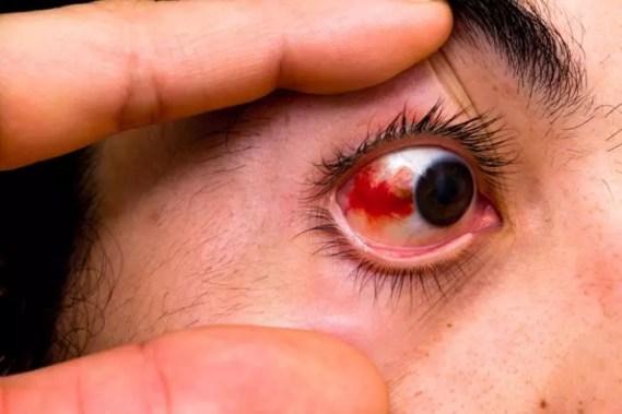 busted-blood-vessel-in-eye