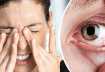how to get rid of a swollen eye fast, How To Get Rid Of A Swollen Eye Fast And Effective