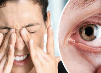 remove makeup, How To Remove Makeup From Your Eyes? – Easy Tips, Effective Methods