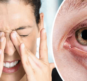 Dry Eyes Treatment