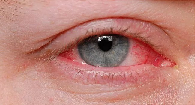 How long does Pink Eye Last, How long does Pink Eye Last