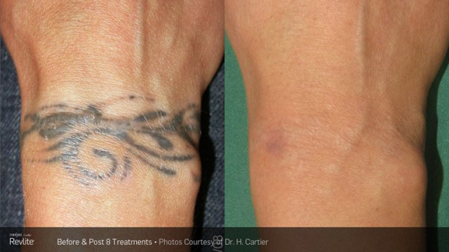 Tattoo Removal | Luxe Laser Center
