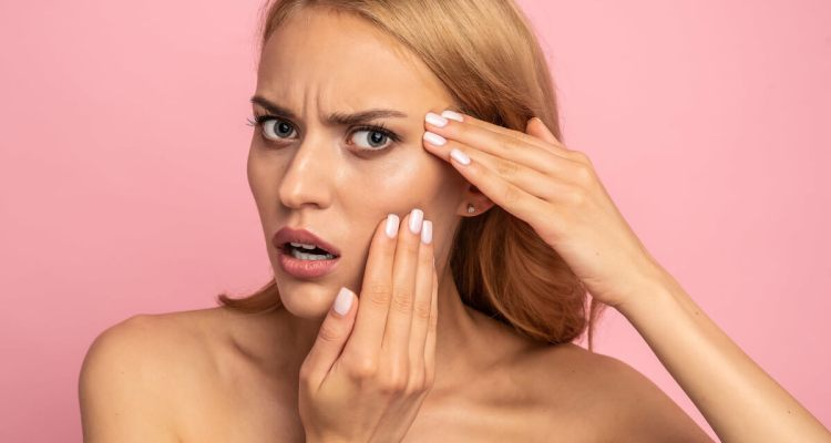 How to get rid of blackheads on your face