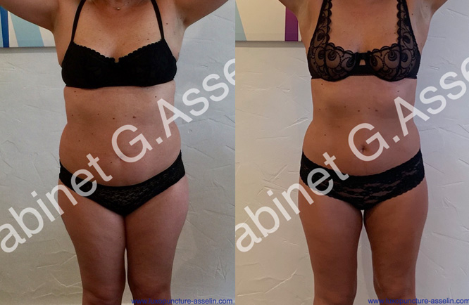 Slimming result luxopuncture - december 2019