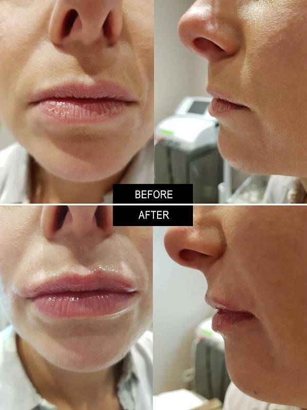 Lip Enhancement Lip Dentist