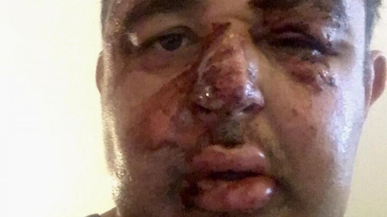 Frédéric Szymczak vient de publier sur Facebook une photo de son visage meurtri par l'accident de moto qui lui est arrivé il y a tout juste un an.