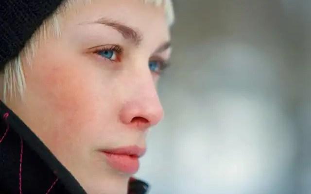 piel sensible, rojez, vida EFEblog
