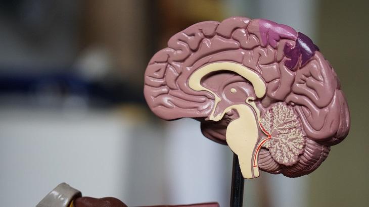 Infectolab - brain