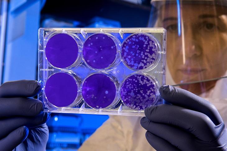 Infectolab - lab testing