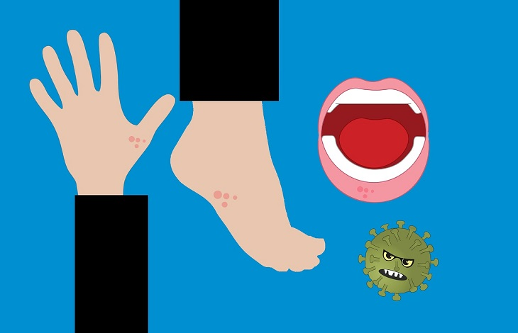 Infectolab - hand foot mouth disease