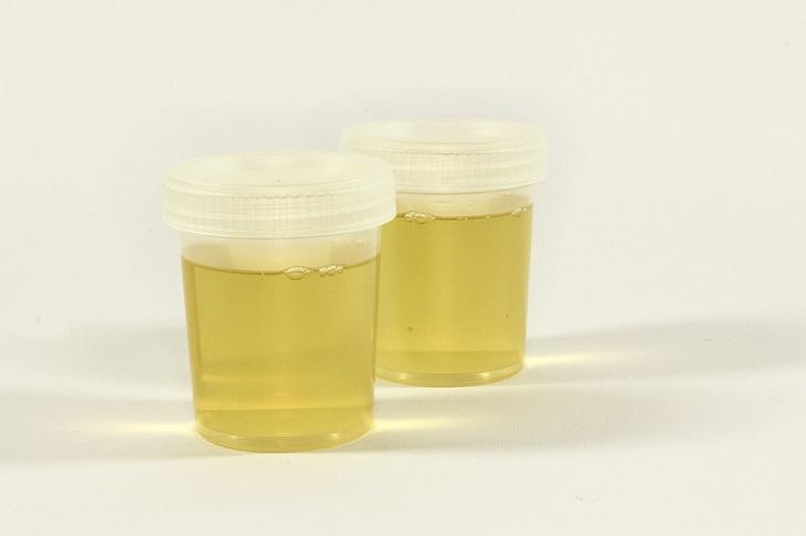 Infectolab - urine sample