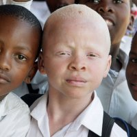 """Efforts to Quell Albino """"Magic"""" Murders in East Africa Underway"""