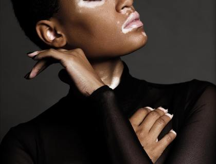 Changing The Face Of Beauty: CoverGirl Features First Black Model With Vitiligo Amy Deanna Lysa Africa
