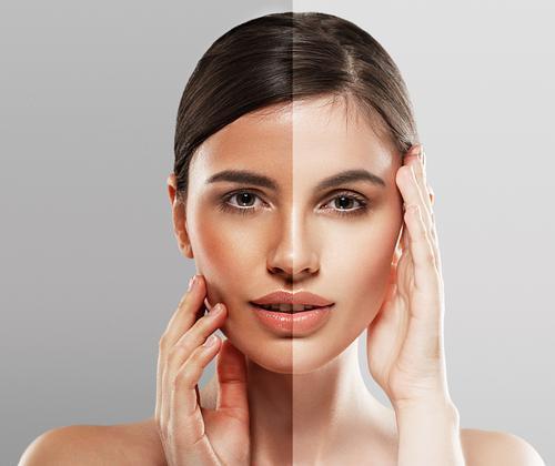 Skin Bleaching, Skin Lightening And The Whole Shebang! Lysa Magazine