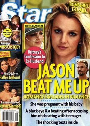 Capa da revista Star mostra a cantora Britney Spears com um olho roxo que poderia ter sido resultado de uma briga com seu namorado, Jason Trawick (1/12/2010)