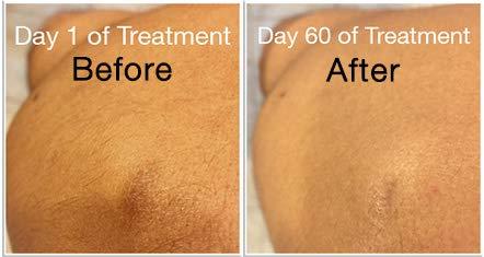 ReTone Stretch Mark Removal: Comprehensive Stretch Mark Treatment (Stretch Mark Cream + Body Cleanser + Body Scrubber) 2