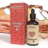 GoNaturals Aceite Rosa Mosqueta Puro - Aceite de Rosa Mosqueta para Cicatrices y...