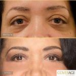 CoverAge Eye Concealer