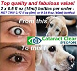 The Strongest Cataract Treating Eye Drops Anywhere, 4.2% N-Acetyl-Carnosine. Over Four Times Stronger Than Most Other N.A.C. Cataract Treating Products. Holistic & Proven Effective on People & Pets!