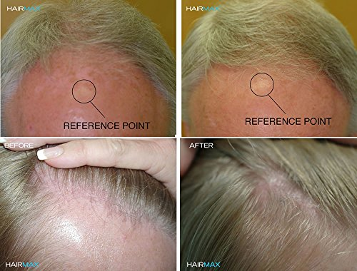 HairMax Laser Hair Growth Cap RegrowMD 272 (FDA Cleared). 272 Lasers for Hair Loss Treatment for Men and Women, Full Scalp Treatment to Reverse Thinning Hair while growing Denser, Fuller Hair. 4