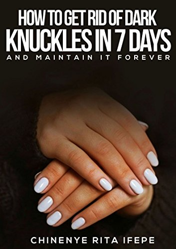 How to Get Rid of Dark Knuckles in 7 days: And Maintain it Forever